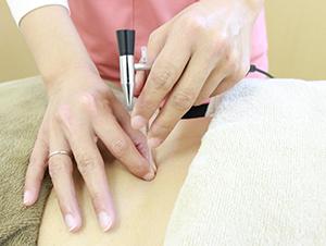 小松市ワイズ整体院の頭痛のための鍼施術風景