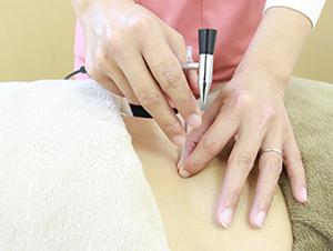 ワイズ整体院の鍼灸施術風景