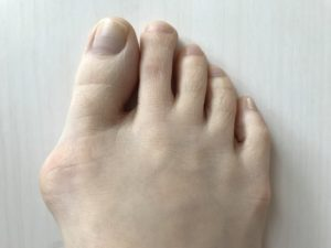 ワイズ整体院の外反母趾画像