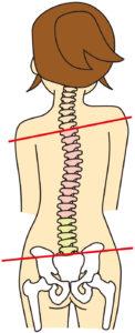 ワイズ整体院の身体の歪み解説図